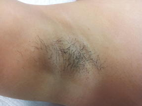 1GentleMax Laser Hair Removal Dubai Wellbeing Medical Centre before