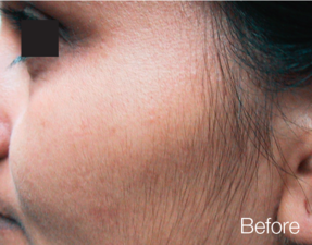 2 GentleMax Laser Hair Removal face Dubai Wellbeing Medical Centre after