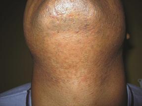 4 GentleMax Laser Hair Removal beard men Dubai Wellbeing Medical Centre after
