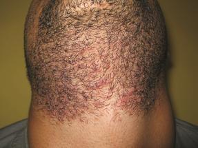 4 GentleMax Laser Hair Removal beard men Dubai Wellbeing Medical Centre before