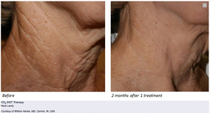 fractional-co2-dot-anti-aging-wrinkles-neck-lift-3-wellbeing-medical-centre-dubai