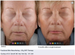 Fractional CO2 DOT Anti Aging Wrinkles Face Lift Neck Lift 4 Wellbeing Medical Centre Dubai