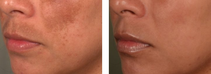 Melasma Pigmentation DubaiWellbeing Medical Centre Lutronic Spectra