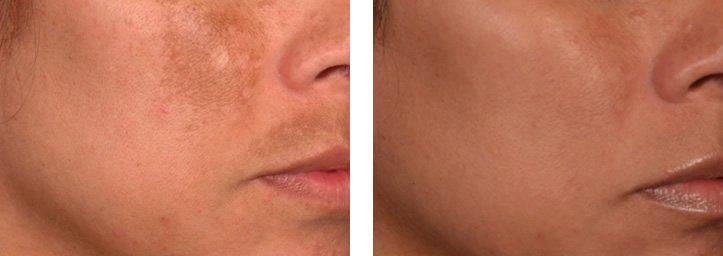 Melasma Pigmentation Dubai Wellbeing Medical Centre Lutronic Spectra