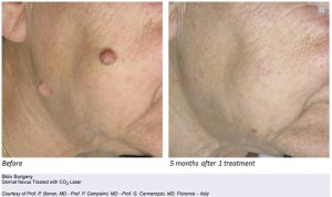 mole-removal-xanthelasma-nevus-negri-milia-skin-tag-warts-removal-fractional-co2-laser-dubai-wellbeing-medical-centre-3