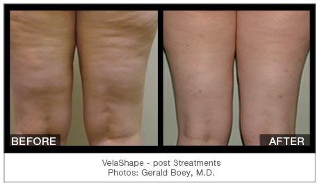 velashape-results-dubai-wellbeingmedical
