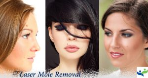 Moles Warts Skin Tags Warts Removal Dubai Wellbeing