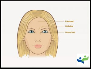 anti-wrinkles botox injections Dubai Wellbeing Medical Centre Plastic Surgeon.jpg