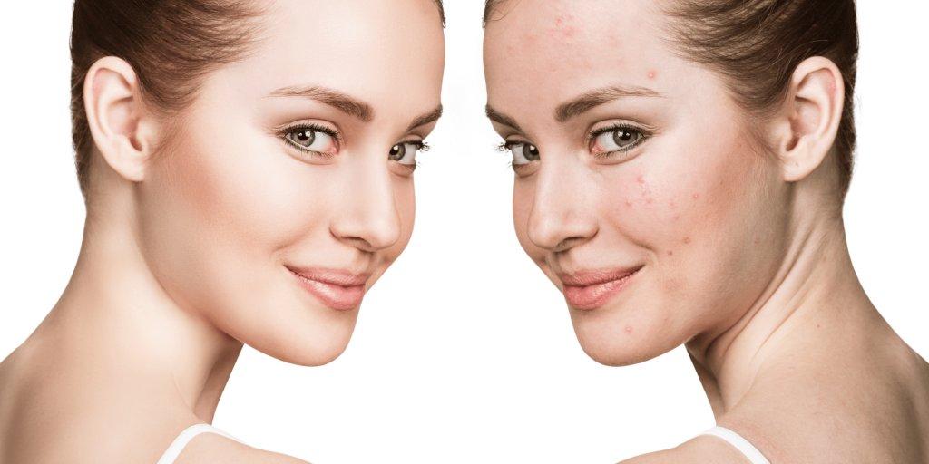 acne scars treatment in dubai