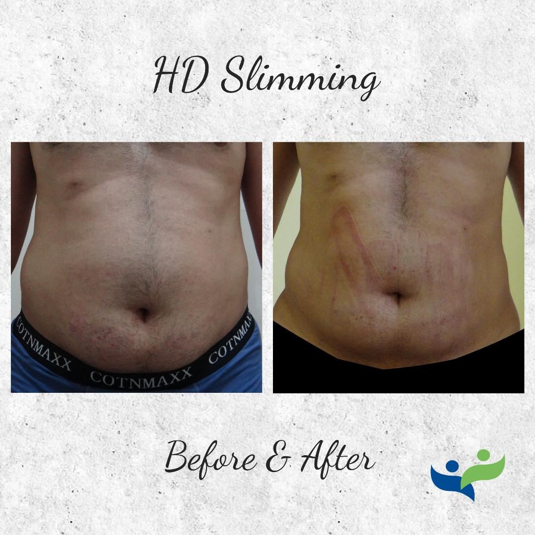 HD Slimming Before & After