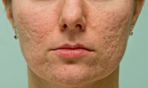 Melasma Treatment in Dubai