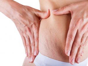 stretch mark removal Dubai