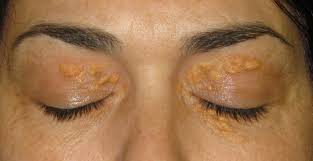 xanthelasma warts removal CO2 laser wellbeing medical centre dubai